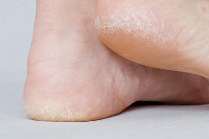 5 remédios naturais para hidratar pés